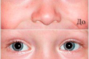 Как убрать красные глаза на фото с телефона